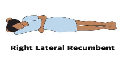 Right lateral position